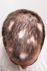 Top of a man's head with Alopecia, a condition where you lose hair in sporadic patches.